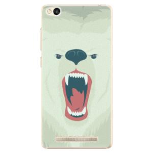 Plastové pouzdro iSaprio Angry Bear na mobil Xiaomi Redmi 3