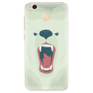 Plastové pouzdro iSaprio Angry Bear na mobil Xiaomi Redmi 4X