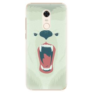 Plastové pouzdro iSaprio Naštvanej Medvěd na mobil Xiaomi Redmi 5 Plus