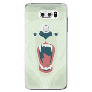 Plastové pouzdro iSaprio Naštvanej Medvěd na mobil LG V30