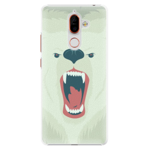 Plastové pouzdro iSaprio Naštvanej Medvěd na mobil Nokia 7 Plus