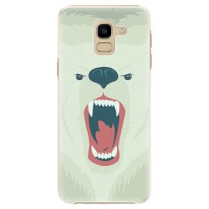 Plastové pouzdro iSaprio Naštvanej Medvěd na mobil Samsung Galaxy J6