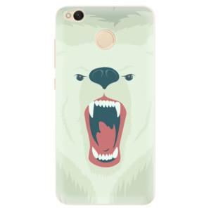 Silikonové pouzdro iSaprio (mléčně zakalené) Naštvanej Medvěd na mobil Xiaomi Redmi 4X
